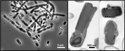 Image - These micrograph images show rod-shaped bacterial cells suspended in pure water. The dark rectangular shapes inside the cells correspond to naturally occurring crystals within the cells.